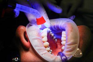 Implantátummal könnyebb